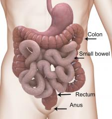 What is bowel cancer